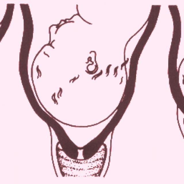 Ako prebieha normálny fyziologický pôrod?